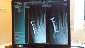 Verletzungen beim Sport besser vorbeugen!